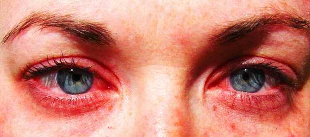 Day 260 Allergies